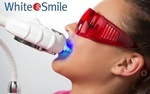 Косметическое отбеливание зубов White&Smile